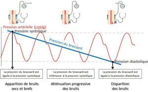L'hypertension artérielle : un problème de santé courant..
