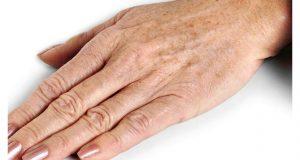 comment traiter les tâches brunes sur les mains