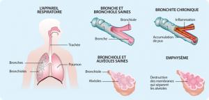 bronchopneumopathie chronique obstructive